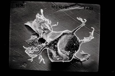 <i><i>Ancyrochitina gutnica</i></i><br />Ruhnu 500 borehole, 371.50 m, Jaagarahu Stage ( 189-21)