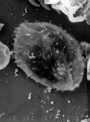 Rhopaliophora reticulata Uutela et Tynni, 1991, GIT 344-294