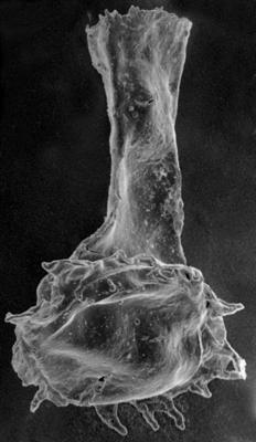 <i><i>Anthochitina primula</i></i><br />Jaagarahu borehole, 59.60 m, Jaagarahu Stage ( 272-33)
