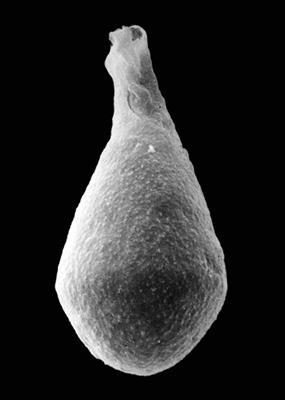 <i><i>Sphaerochitina acanthifera</i> | Sphaerochitina acanthifera Eisenack, 1955</i><br />Pavilosta 51 borehole, 739.00 m, Ludfordian ( 576-31)