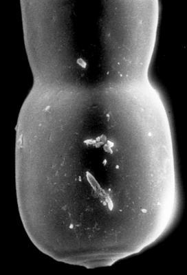 <i><i>Chitinozoa</i> | Chitinozoa gen. et sp. indet.</i><br />Jaagarahu borehole, 35.70 m, Jaani Stage ( 197-22)