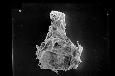 <i><i>Ancyrochitina</i> | Ancyrochitina n. sp.</i><br />Ohesaare borehole, 250.48 m, Jaagarahu Stage ( 754-1797)