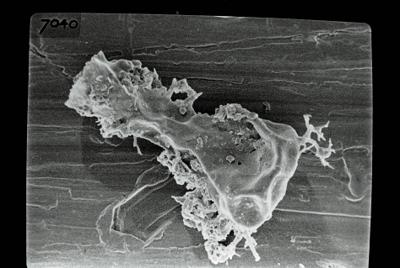 <i><i>Ancyrochitina</i> | Ancyrochitina sp. sp.</i><br />Ruhnu 500 borehole, 361.90 m, Jaagarahu Stage ( 754-693)