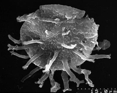Stelliferidium cortinulum (Deunff,1961) Deuff, Gorka & Rauscher 1974, TUG 1537-22