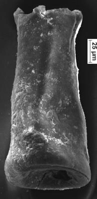 <i><i>Conochitina linearistriata</i></i><br />Ikla borehole, 209.50 m, Jaagarahu Stage ( 350-32)