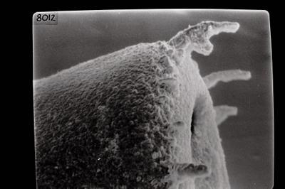 <i><i>Spinachitina</i> | Coronochitina silurica</i><br />Ruhnu 500 borehole, 573.30 m, Raikküla Stage ( 754-1784)