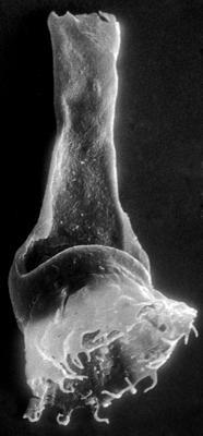 <i><i>Anthochitina primula</i></i><br />Viki borehole, 140.10 m, Adavere Stage ( 272-32)