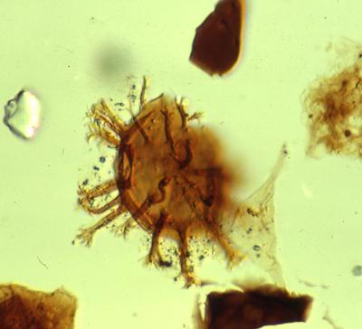 Cymatiogalea sp., TUG 1520-12