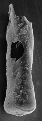 <i><i>Chitinozoa</i> | Conochitina cf. mamilla Laufeld, 1974</i><br />Ninase cliff,  m, Jaani Stage ( 272-109)