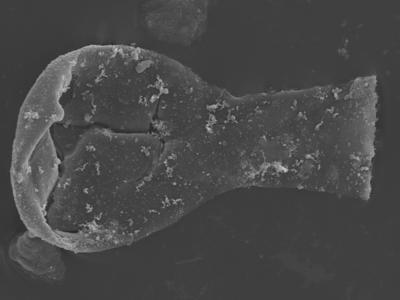<i><i>Ramochitina tabernaculifera</i> | Ramochitina tabernaculifera?</i><br />Ohesaare borehole, 160.20 m, Jaagarahu Stage ( 754-342)