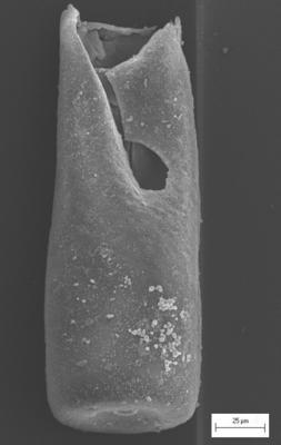 <i><i>Conochitina elongata</i></i><br />Ikla borehole, 320.00 m, Adavere Stage ( 754-1405)