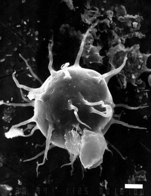 Baltisphaeridium hirsutoides Eisenack (1931), 1958, GIT 344-41