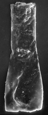 <i><i>Chitinozoa</i> | Vitreachitina sp. 3 Nestor, 1994</i><br />Nagli 106 borehole, 633.10 m, Adavere Stage ( 272-197)