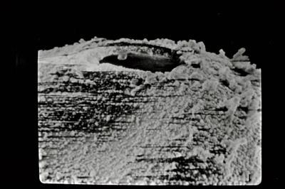 <i><i>Salopochitina filifera</i></i><br />Ohesaare borehole, 22.90 m, Kaugatuma Stage ( 754-729)