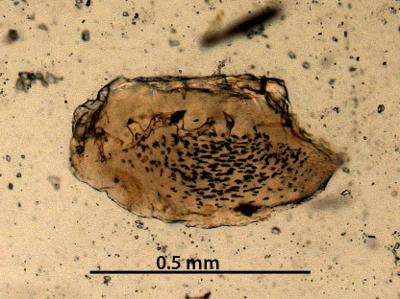 Cheirolepidiformes