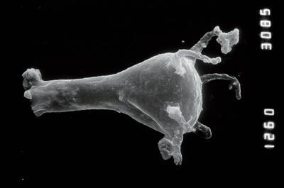 <i><i>Plectochitina nodifera</i></i><br />Taagepera borehole, 408.80 m, Juuru Stage ( 754-904)