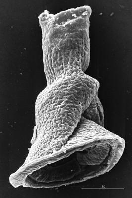 <i><i>Cyathochitina campanulaeformis</i></i><br />Aizpute 41 borehole, 982.60 m, lower Silurian ( 345-2)