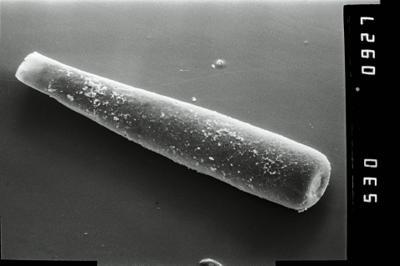 <i><i>Conochitina</i> | Conochitina cf. iklaensis</i><br />Ruhnu 500 borehole, 493.15 m, Raikküla Stage ( 754-1020)