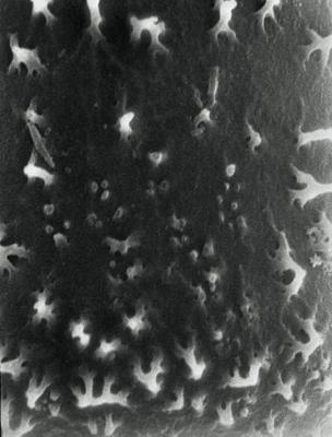 <i><i>Conochitina robusta</i> | Conochitina robusta Eisenack, 1959</i><br />Rapla borehole, 125.40 m, Rakvere Stage ( 190-7)