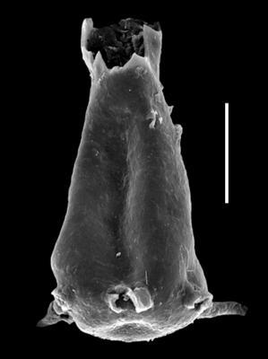 <i><i>Ancyrochitina rumbaensis</i></i><br />Paatsalu 527 borehole, 93.40 m, Llandovery ( 493-23)