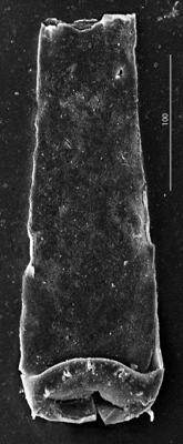 <i><i>Spinachitina</i> | Spinachitina sp.</i><br />Aispute 41 borehole, 977.00 m, lower Silurian ( 345-4)