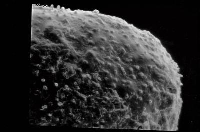 <i><i>Angochitina elongata</i></i><br />Ohesaare borehole, 98.90 m, Paadla Stage ( 754-572)