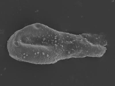 <i><i>Sphaerochitina</i> | Sphaerochitina sp.</i><br />Ohesaare borehole, 147.60 m, Rootsiküla Stage ( 754-356)