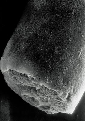 <i><i>Conochitina clavaherculi</i> | Conochitina clava-herculi Eisenack, 1959</i><br />Rapla borehole, 175.30 m, Uhaku Stage ( 190-22)