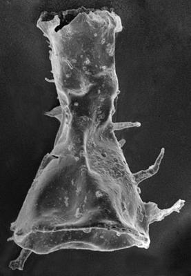 <i><i>Ramochitina spinosa</i> | Gotlandochitina spinosa (Eisenack, 1932)</i><br />Ohesaare borehole, 266.50 m, Jaagarahu Stage ( 220-40)