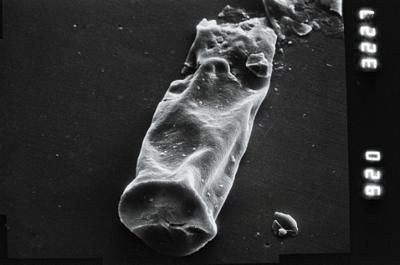 <i><i>Spinachitina</i> | Spinachitina sp.</i><br />Taagepera borehole, 400.00 m, Juuru Stage ( 754-903)