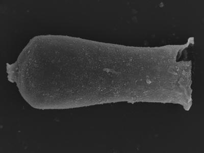 <i><i>Cingulochitina baltica</i> | Cingulochitina baltica?</i><br />Kolka 54 borehole, 419.80 m, Jaagarahu Stage ( 754-1228)
