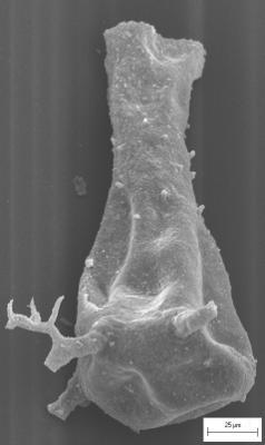 <i><i>Ancyrochitina rumbaensis</i></i><br />Staicele 4 borehole, 298.20 m, Adavere Stage ( 754-1376)