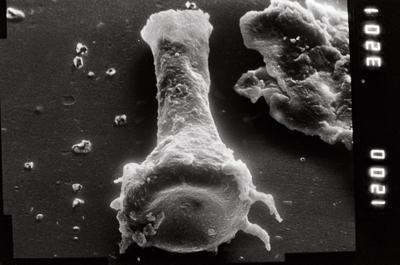 <i><i>Ancyrochitina laevaensis</i></i><br />Viki borehole, 221.15 m, Juuru Stage ( 754-931)