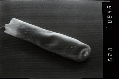 <i><i>Conochitina</i> | Conochitina aff. proboscifera</i><br />Varbla 502 borehole, 160.15 m, Adavere Stage ( 754-1030)