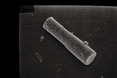 <i><i>Conochitina edjelensis</i> | Conochitina aff. edjelensis</i><br />Varbla 502 borehole, 176.05 m, Raikküla Stage ( 754-140)