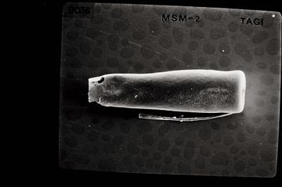 <i><i>Conochitina</i> | Conochitina sp.</i><br />Ohesaare borehole, 181.45 m, Jaagarahu Stage ( 754-642)
