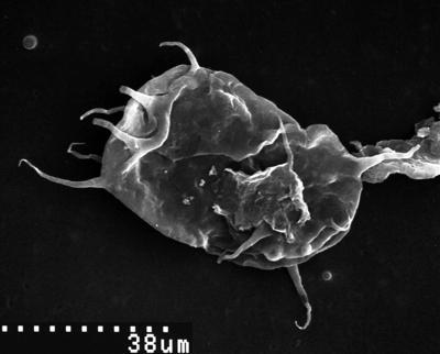 Acanthodiacrodium tremadocum Gorka, 1967, TUG 1539-69