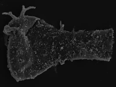 <i><i>Ancyrochitina plurispinosa</i></i><br />Kolka 54 borehole, 496.00 m, Jaagarahu Stage ( 754-1289)