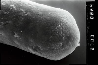 <i><i>Eisenackitina</i></i><br />Kirikuküla borehole, 3.60 m, Adavere Stage ( 754-1905)