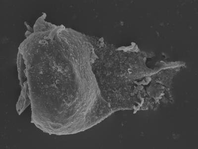 <i><i>Plectochitina</i>   Plectochitina sp.</i><br />Kolka 54 borehole, 499.00 m, Jaagarahu Stage ( 754-448)