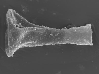 <i><i>Sphaerochitina concava</i> | Sphaerochitina cf. concava</i><br />Ohesaare borehole, 165.35 m, Jaagarahu Stage ( 754-324)