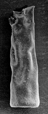<i><i>Chitinozoa</i> | Conochitina sp. 4 Nestor, 1984</i><br />Pulli 1 borehole, 59.80 m, Adavere Stage ( 223-3)