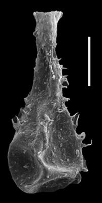 <i><i>Ramochitina</i> | Ramochitina sp. 2 Nestor, 2009</i><br />Dubovskoye borehole, 1123.50 m, Přidoli ( 607-43)